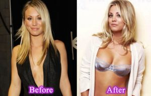 kaley-cuoco-breast-implants